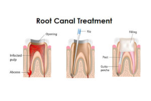 Root Canal Treatment: Information You Need To Recognize