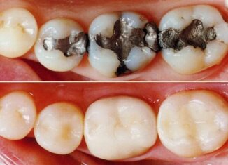 How To Choose The Right Type Of Tooth Filling Material