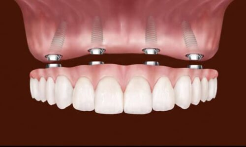 How To Clean All-On-4 Dental Implants?