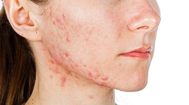 What does hyaluronic acid do for acne